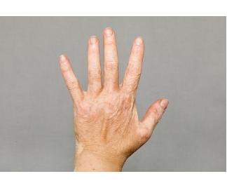 Macchie bianche sulla pelle
