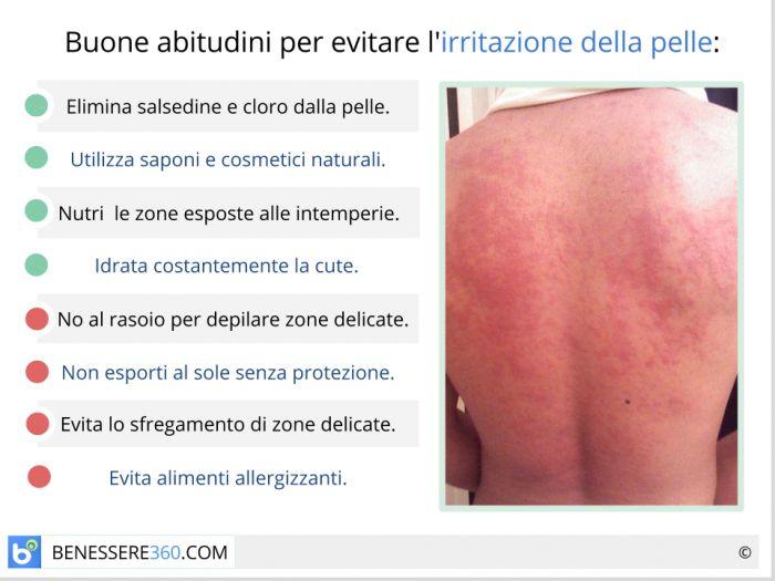 trattamento delle infezioni della pelle del seno