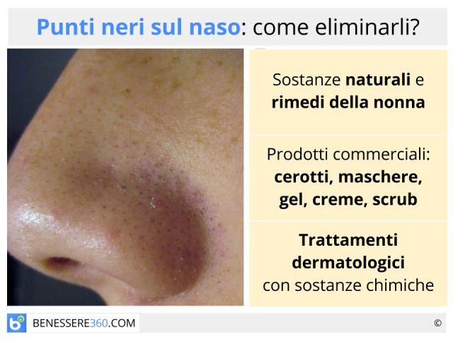 Punti neri sul naso: come eliminarli? Cerotti, tecniche e rimedi naturali