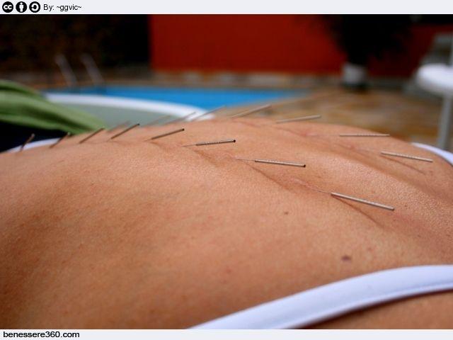 Agopuntura per dimagrire for Dimagrire interno coscia benessere 360