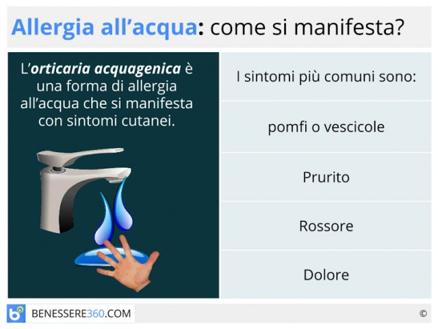 Allergia all'acqua: sintomi, cause e cura dell'orticaria acquagenica