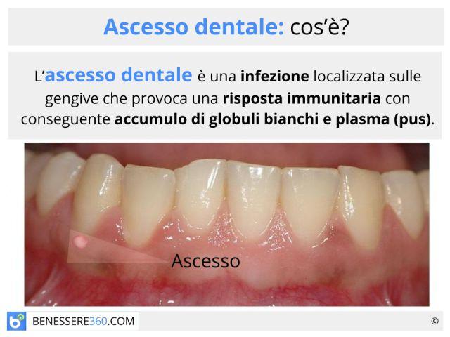 Ascesso dentale: sintomi, cause, cure e rimedi naturali