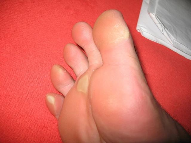 Duroni e calli ai piedi: come eliminarli? Cure e rimedi naturali