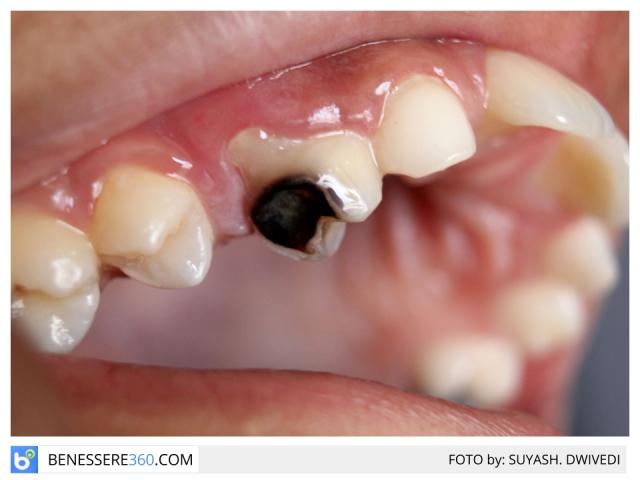 Carie dentale: tipi, sintomi, cause, cura e prevenzione