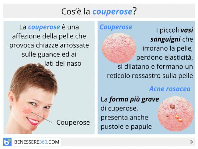 Couperose: cause, cure e rimedi naturali per l'acne rosacea