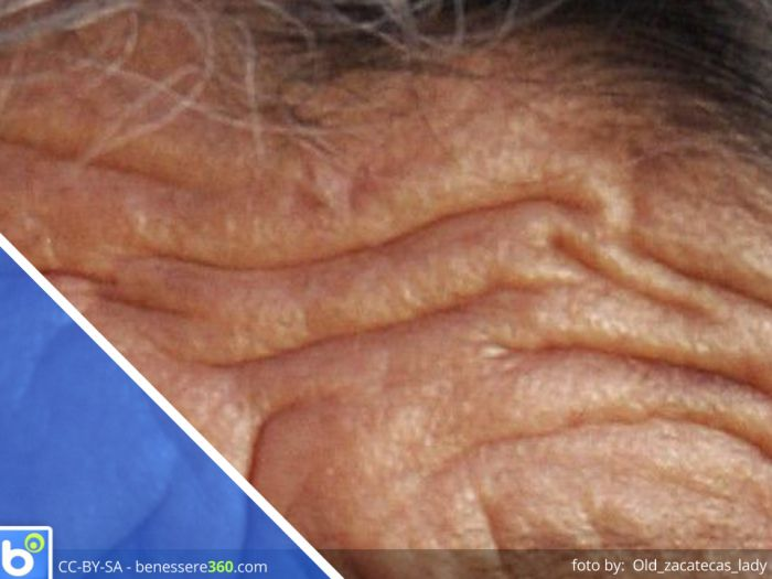 Posti di pigmentary termici