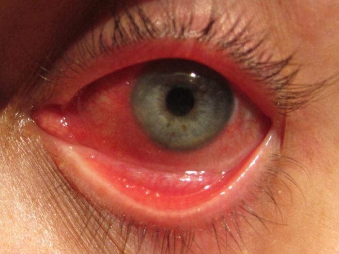 327f287b48 Occhi rossi: cause e rimedi